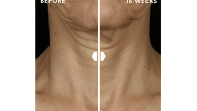 Photo of Visibly Repair Neck Creases and Signs of Aging With This Serum